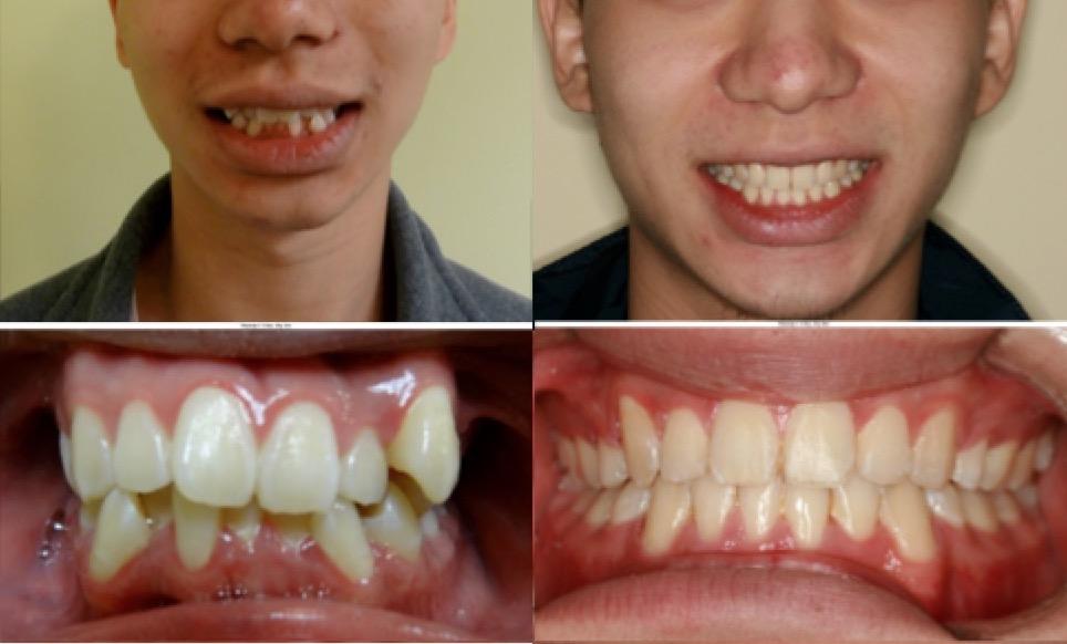 Orthodontist Staten Island New York